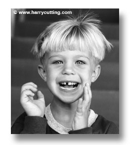 boy-laughing-missing-tooth